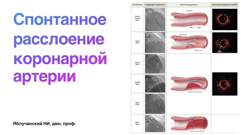 Спонтанное расслоение коронарной артерии